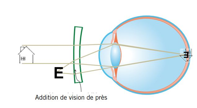 Myopie evolutive MyopiLux addition vision de près Optique des Lions